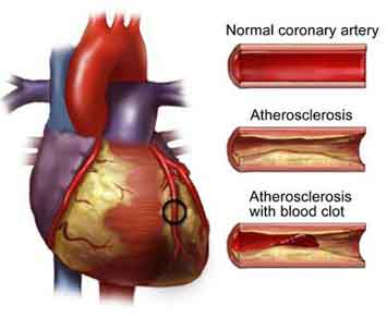 Heart Disease: Education as a Means of Combating The Silent Killer
